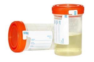 Probation Parole Drug Testing